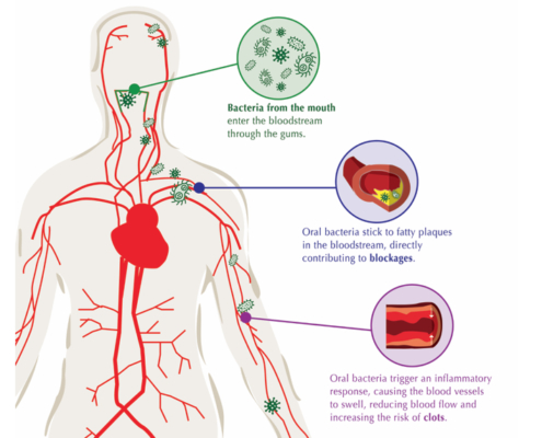 Gum and Heart Disease Graphic